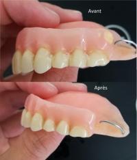 Tartre et coloration de votre dentier :faites un détartrage par votre prothésiste