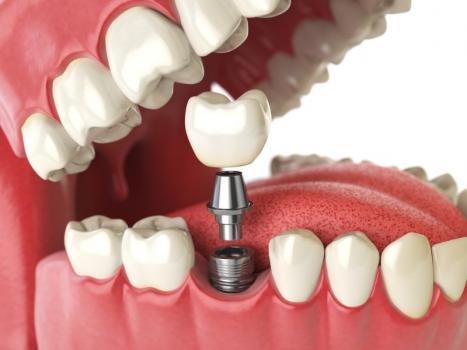 Création implants dentaires Charleroi