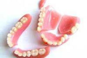 réparation prothèse dent Charleroi